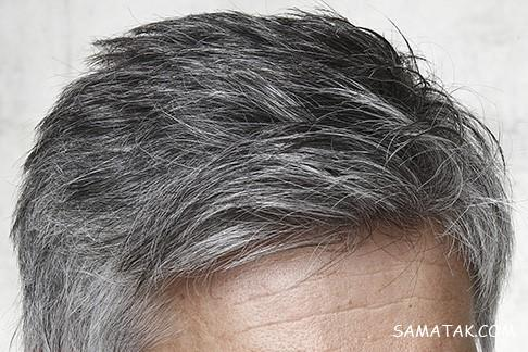پاورپوینت هلیله سیاه و سفیدی مو