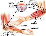 پاورپوینت آسیب های آرنج
